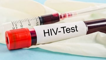 HIV 101: Is It Possible I Got a False Positive on My HIV Test?