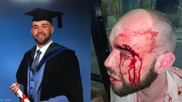 Police in England Arrest Two for Brutal Attack on Gay Man in Liverpool