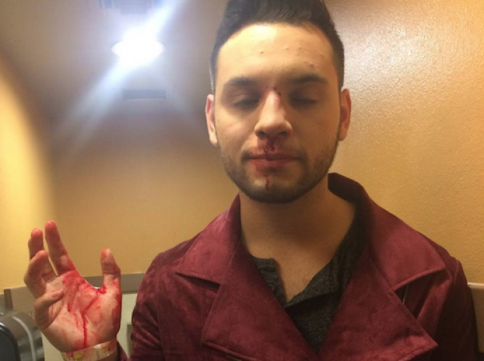 Gay Latino Student in Texas Attacked for Wearing High Heels, Assault Linked  to Trump Victory