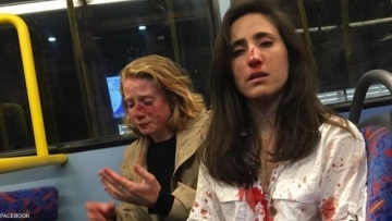 Teenage Boys Plead Guilty to Brutal Bus Attack on Lesbian Couple